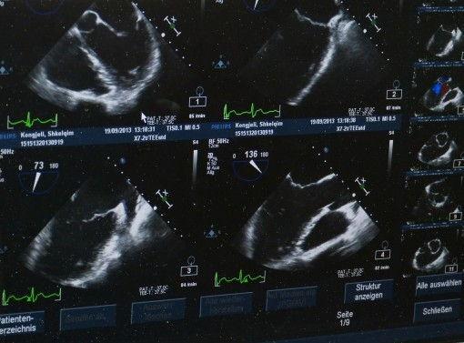 Poznań - usg doskonałą metodą diagnostyczną